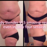 lipo-laser-results-ladies1 0