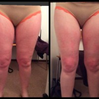 lipo-laser-results-ladies2
