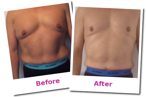 laser lipo Taunton before and after